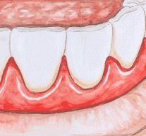 A gengiva inchada e ou sangrando é um sintoma claro de gengivite, uma doença que causa inflamação e infecção das gengivas, podendo até chegaraos ligamento