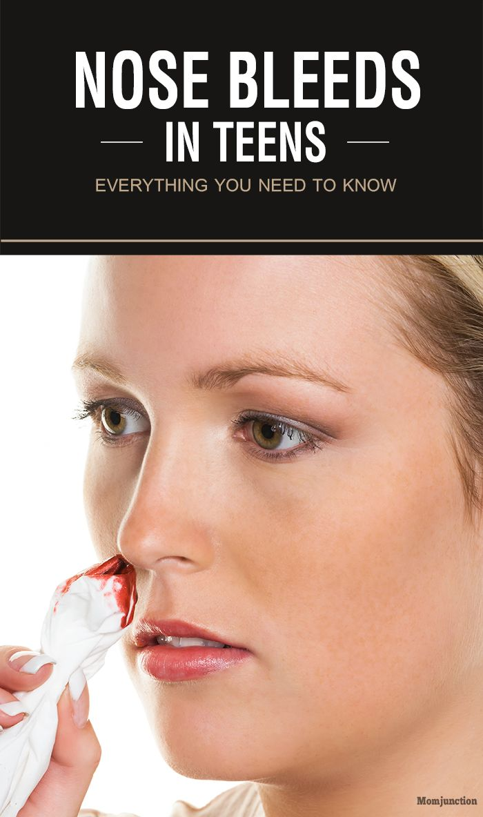 Nose Bleeds In Teens – Everything You Need To Know :If you notice that your teenager has a tendency of nosebleeds, you can prevent it in the following ways