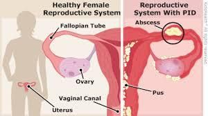 can pid be cured? How do women treat and prevent pelvic inflammatory disease? Pelvic inflammatory disease (PID) is an infection of the female reproductive system. The signs and symptoms of PID include lower abdominal pain, vagina discharge, fever, burning...