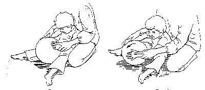 Ball Rolling To encourage child to straighten arms. Place child in a propped sitting position. Place your hands over the child's hands and assist child in rolling the ball forward. As the child improves at this activity, you may decrease your assistance. Desired Response When child pushes ball, arms will straighten. Undesired Response; Child's arms will turn in. Special Instructions This exercise is good for sensory input, awareness of both arms and weight bearing.
