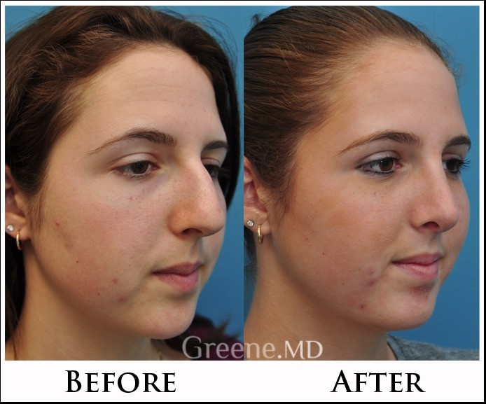 Image result for rhinoplasty surgeon