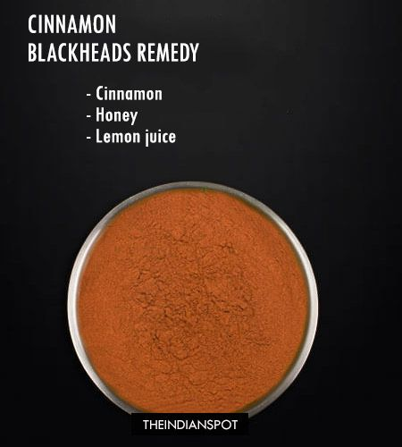 Egg white face mask – Thisegg white maskcan be used for all skin types however it is an amazing mask for my acne-prone skin.Click here >> Clear Blackheads with cinnamon– Home remedies are simple and also most effective to get rid of blackheads.Read More Here >> Toothpaste Blackheads Clearing Mask– Toothpaste Is One Of The …