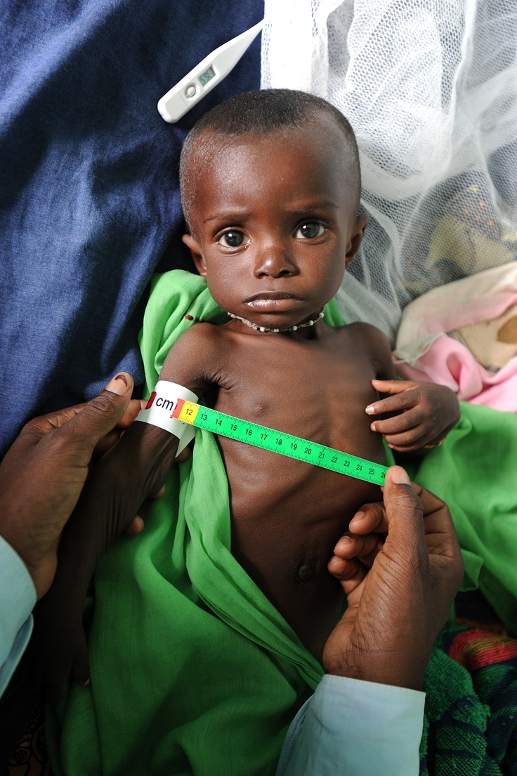 An IRC doctor is measuring a severely malnourished child's