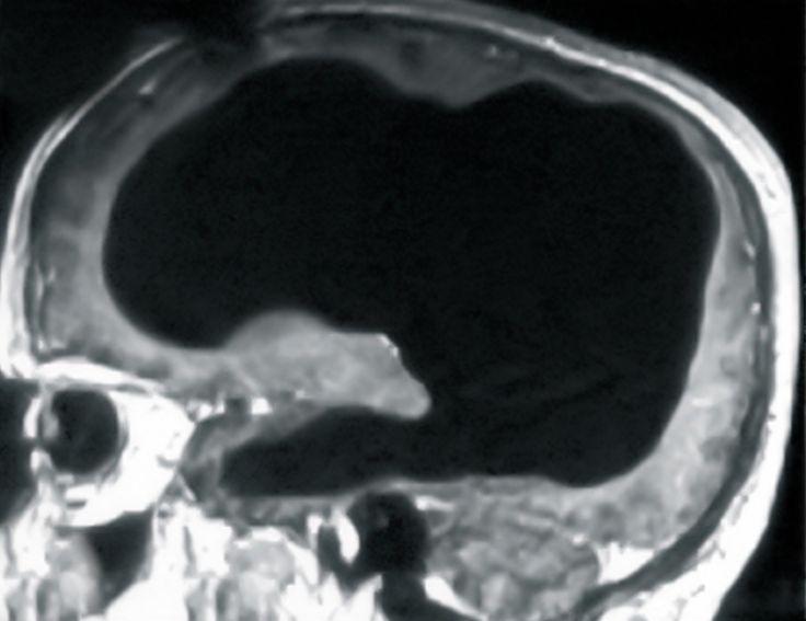 Des médecins ont découvert que leur patient, en bonne santé, avait perdu 90% de son cerveau sans que cela n'affecte ses capacités.
