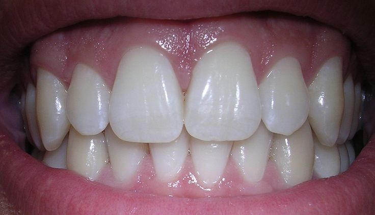 There are several effective ways to make your receding gum line grow back and stimulate gum growth. However it's important to know what caused receding gums