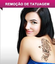 Remoção de Tatuagem
