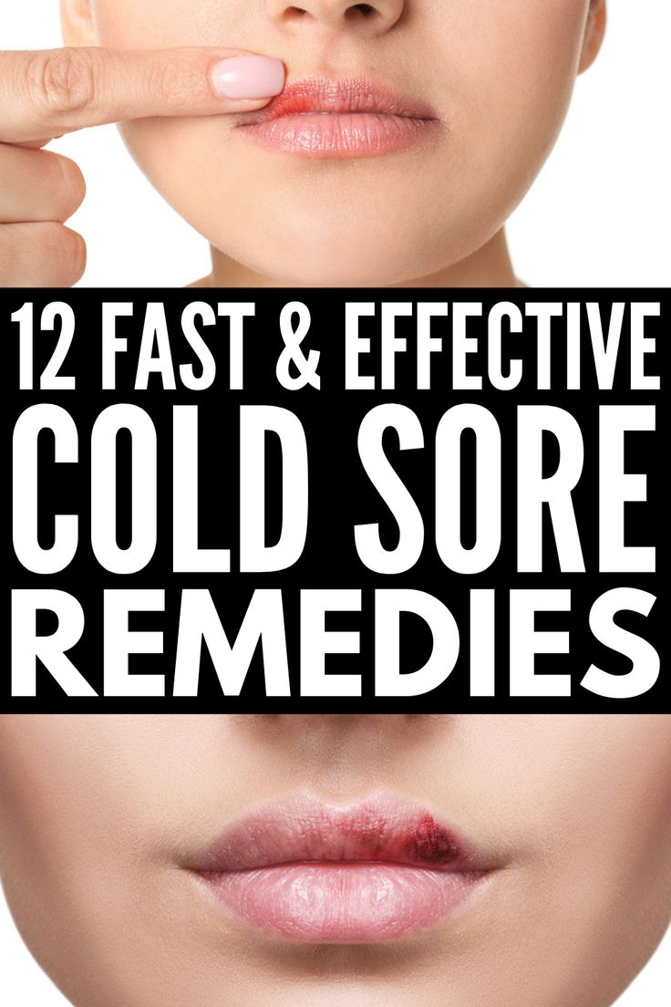 Fast and effective 12 natural cold sore remedies that
