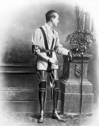 Young man wearing artificial legs and an artificial arm, 1890-1910. Studio photograph of a young man wearing a pair of artificial arms and two artificial legs. The devices were manufactured by James Gillingham (1839-1924), a boot- and shoemaker based in Chard, Somerset. Gillingham first started making artificial limbs after a local man lost an arm firing a cannon for a celebratory salute in 1863.