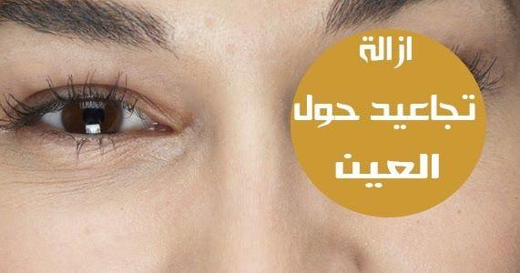 طريقة إزالة التجاعيد حول العين في 5 دقائق فقط تجاعيد العين هي الخطوط الدقيقة التي تظهر أسفل منطقة العين بسبب عوامل متعددة عادة ما تتشكل التجاعيد في العين أو