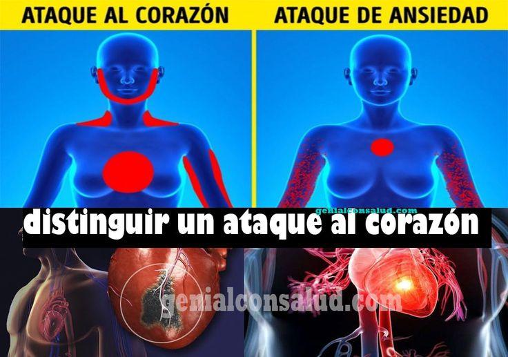 """cómo distinguir un ataque al corazón: Si sufre un ataque de ansiedad """"o crisis de pánico"""" y también un ataque al corazón ya que tienen síntomas similares:"""
