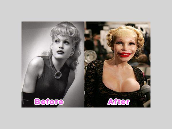 Top 10 Best Examples Of Worst Plastic Surgery Amanda