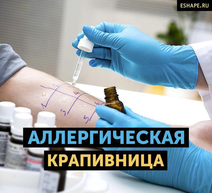 аллергическая крапивница фото симптомы и лечение