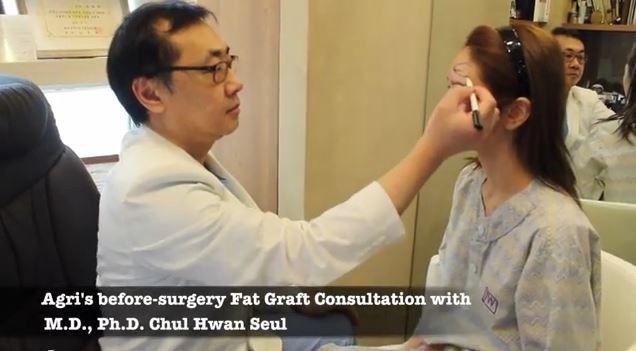 JW整形医院薛澈焕在为新加坡求美者做自体脂肪移植设计!