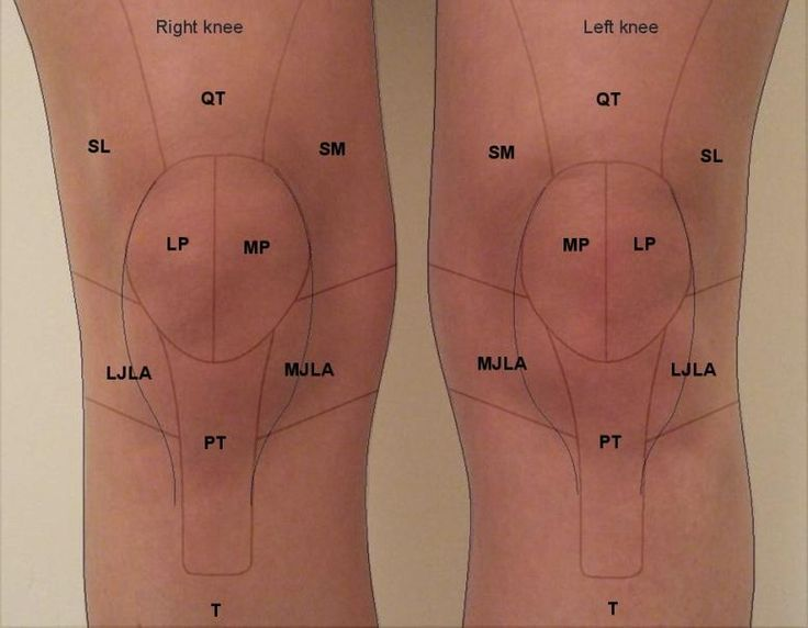 LJLA - lateral joint line area SL - superior lateral MJLA ...