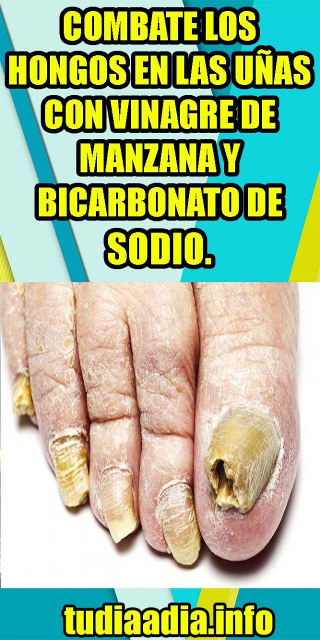 Combate Los Hongos En Las Uñas Con Vinagre De Manzana Y Bicarbonato De Sodio Tudiaadia Info Home Remedies The Cure Remedies