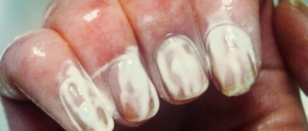 Απλώνει Οδοντόκρεμα στα Νύχια της και Αρχίζει να τα Τρίβει. Μόλις δείτε το Αποτέλεσμα θα το Κάνετε κι εσείς.