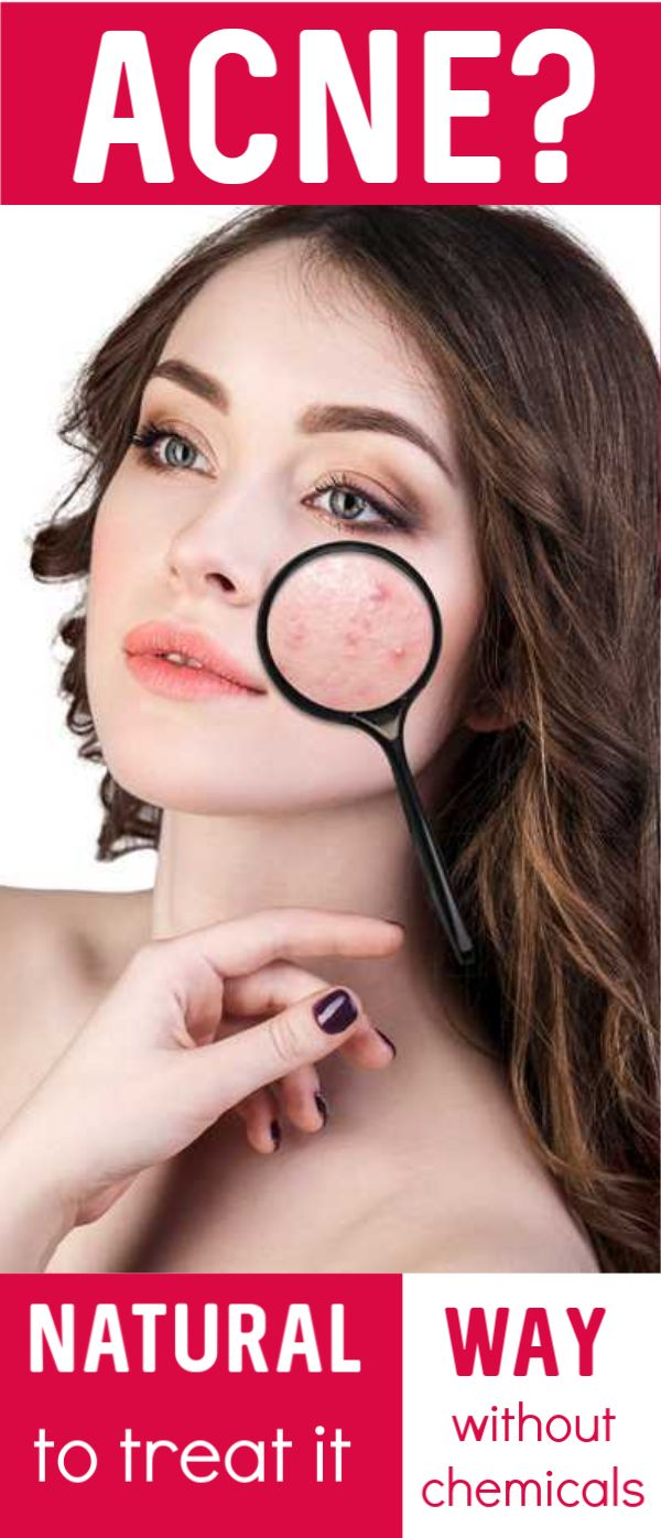 Natural Way to Treat Acne without Chemicals