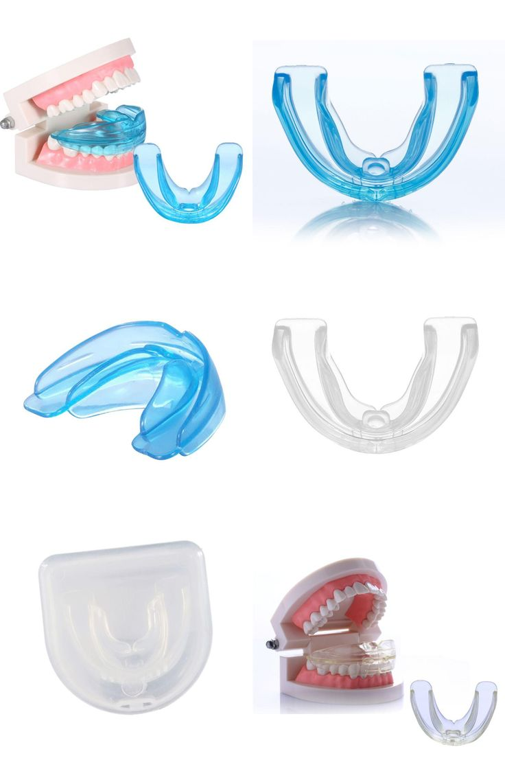 [Visit to Buy] 1PCS Professional Teehth Beauty Dental Tooth Teeth Orthodontic Appliance Trainer Alignment Braces Mouthpieces #Advertisement