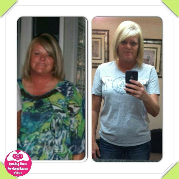 "Malissa says ~ Here is my newest update, I have psoriatic arthritis that I take weekly shots for, migraines, no energy, I am 5'7"" and weighed 184, a loose size 16/tight 14, I started Plexus Slim/2accelerators a day sometime in July, I am now down 25 pounds, a size 7/8, no joint pain, no migraines and a ton of energy, it's amazing what a little pink drink and 2 capsules will do for you, I love my pink drink!!"