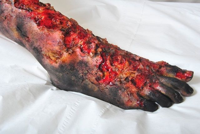 burn special effects makeup