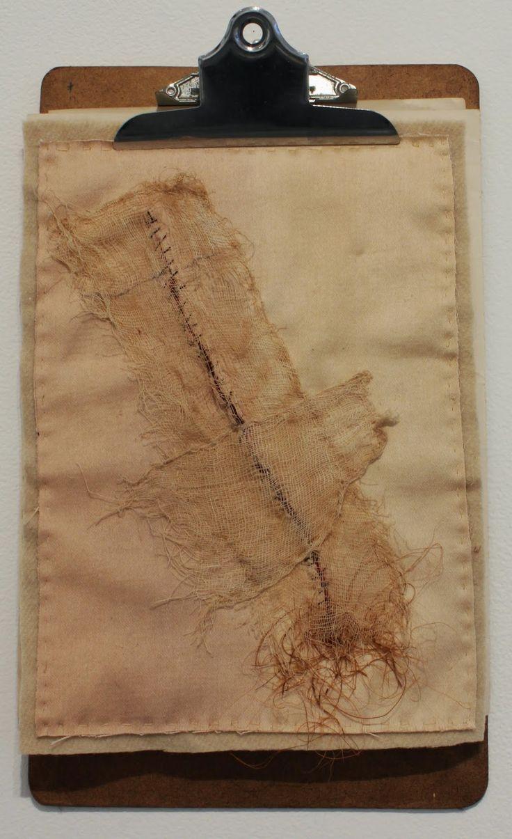 Specimen # 26.Scar .soft tissue anatomy sculpture by Andrew Delaney .Anno Domini Home . The Vivisector . Pic by Vikki Kassioras