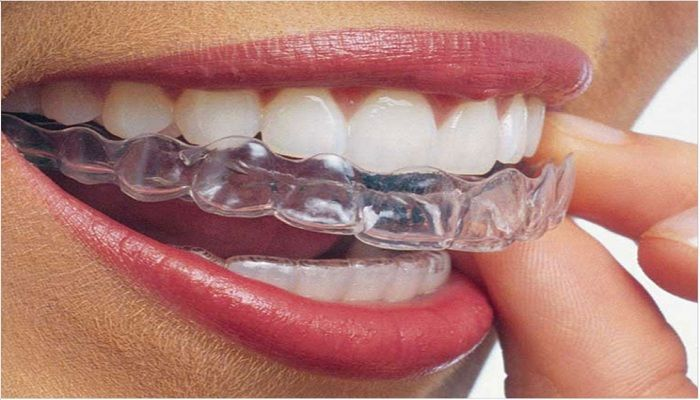 Global And United States Invisible Braces Market 2017 Top Manufacturers - Dentsply Sirona, Angelalign, Align Technology, Ormco, Smartee - https://techannouncer.com/global-and-united-states-invisible-braces-market-2017-top-manufacturers-dentsply-sirona-angelalign-align-technology-ormco-smartee/