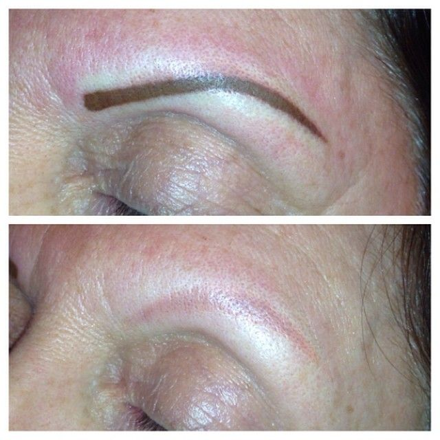 17 best images about tattoos eyebrow on pinterest for Eyebrows tattoo removal laser