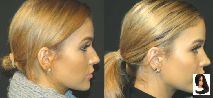 Revision Rhinoplasty Korea (Before And After) – #korea #Revision #rhinoplasty