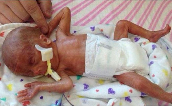 //lifenews.com/2015/04/02/baby-born-at-23-weeks-doing-well-after-parents-post-photo-to-stop-late-term-abortions/