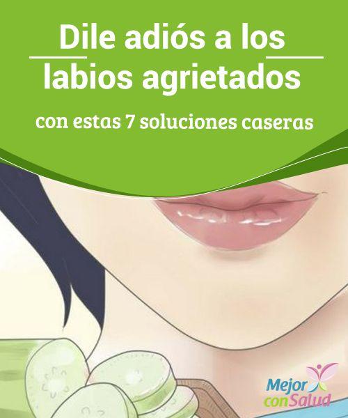 Dile adiós a los #LabiosAgrietados con estas 7 soluciones caseras   Los labios agrietados son antiestéticos, dolorosos y #Susceptibles a las infecciones. Te damos 7 soluciones caseras para acelerar su recuperación. #Belleza