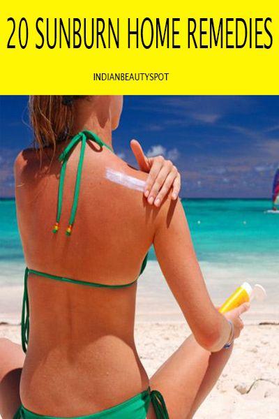 20-sunburn-home-remedies