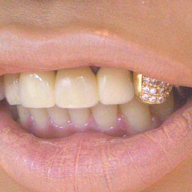Gold Diamond Tooth Cap