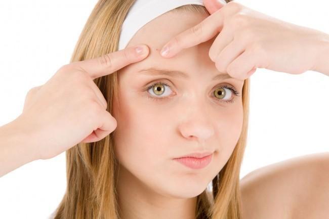 Remedios naturales contra los granos y el acné