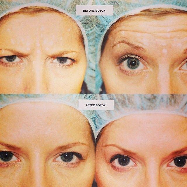 قبل وبعد البوتكس Botox الرياض تجميل بوتكس تجاعيد وجه Dramrad Face Baby Face Beauty