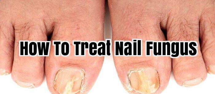 How To Treat Nail Fungus #NailFungus #ToeNailFungus