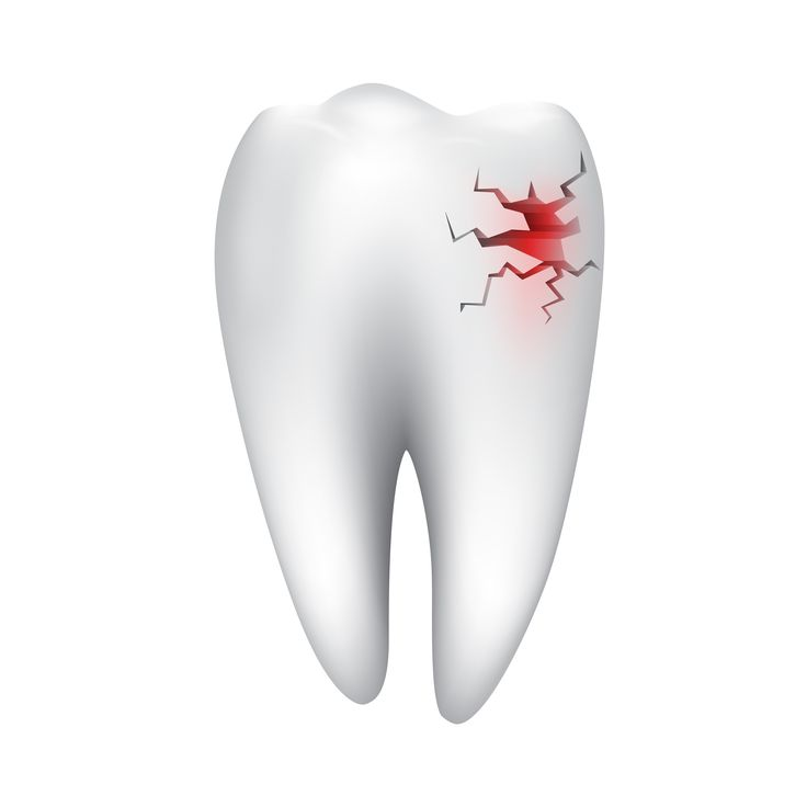 Have you ever had an accident and knocked out a #tooth? You may need #Emergency #Dental care !! http://www.drjlv.com/general-dental-services/emergency-dental-care-las-vegas/