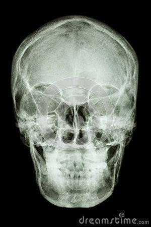 Normal asian humans skull (Thai people)