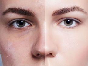Cómo producir colágeno de forma natural para una piel hermosa y radiante. !! – Info Viral