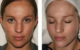 Image result for chemical peeling before and after photos