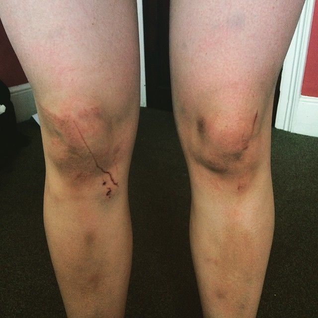 """@gritcamp's photo: """"our editor Helena's knees after her first #ocr today(#warriorrun): bruises upon bruises and deep cuts. Surprisingly she's hooked and wants more. next time: spartan stadium race! #immortals #ocrgirls #running #spartanrace #toughmudder #spartantraining #finisher #spartanchick # toughmudder #obstaclerace #obstacleracetraiming #fitchick #battlescars"""""""