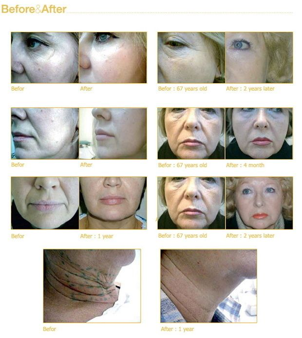 www.urbanbeautythailand.com Bring Back Youthfulness With Gold Thread Lift- Face Lift Thailand