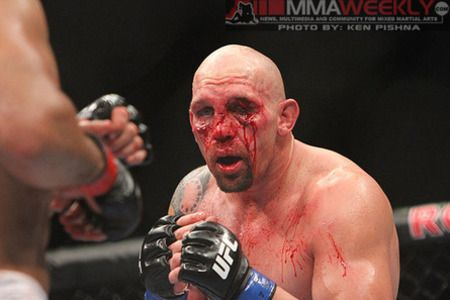 For that Mma fighter broken nose accept
