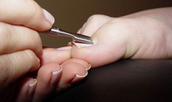 Natural Cures for Ingrown Toenails... | See more nail designs at http://www.nailsss.com/nail-styles-2014/