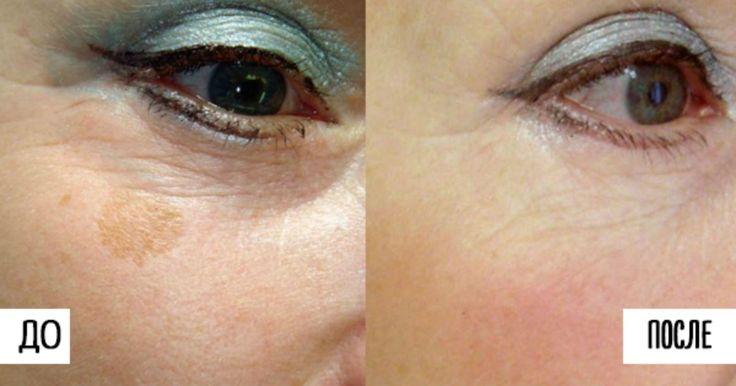 Пигмент кожи меланин иногда бывает коварен. В то время, как некоторые люди спокойно живут и не подозревают о его…