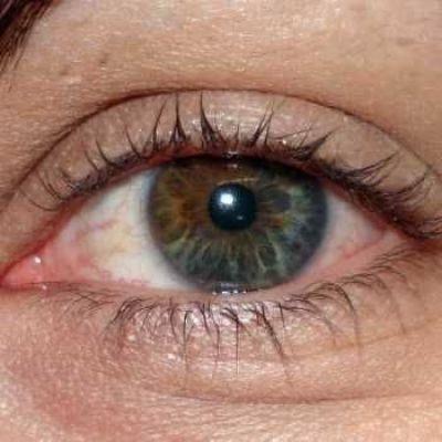 Dubbele oogkleur