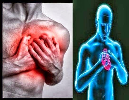 Medbunker La verità: Come salvarsi da un infarto quando ci si trova da ...