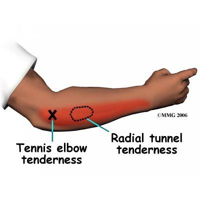 Lateral Epicondylitis (Tennis Elbow)   eorthopod.