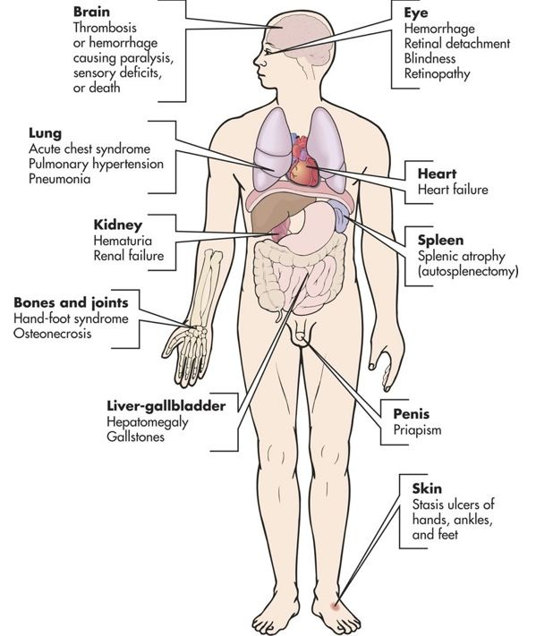 1344 best nursing: body systems, diseases, etc images on pinterest, Muscles
