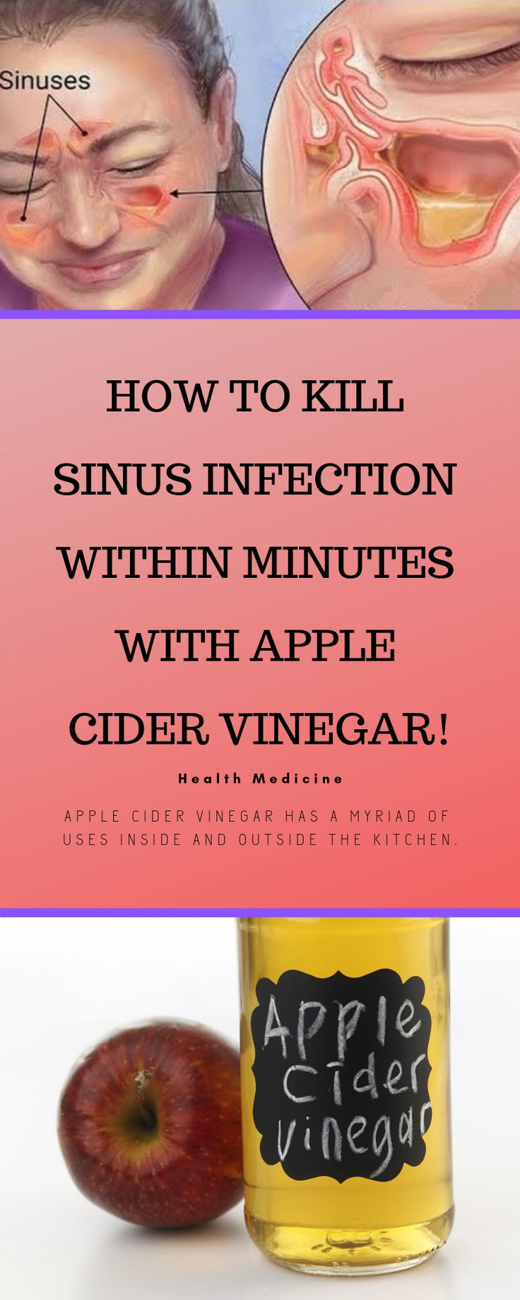 HOW TO KILL SINUS INFECTION WITHIN MINUTES WITH APPLE CIDER VINEGAR! 1