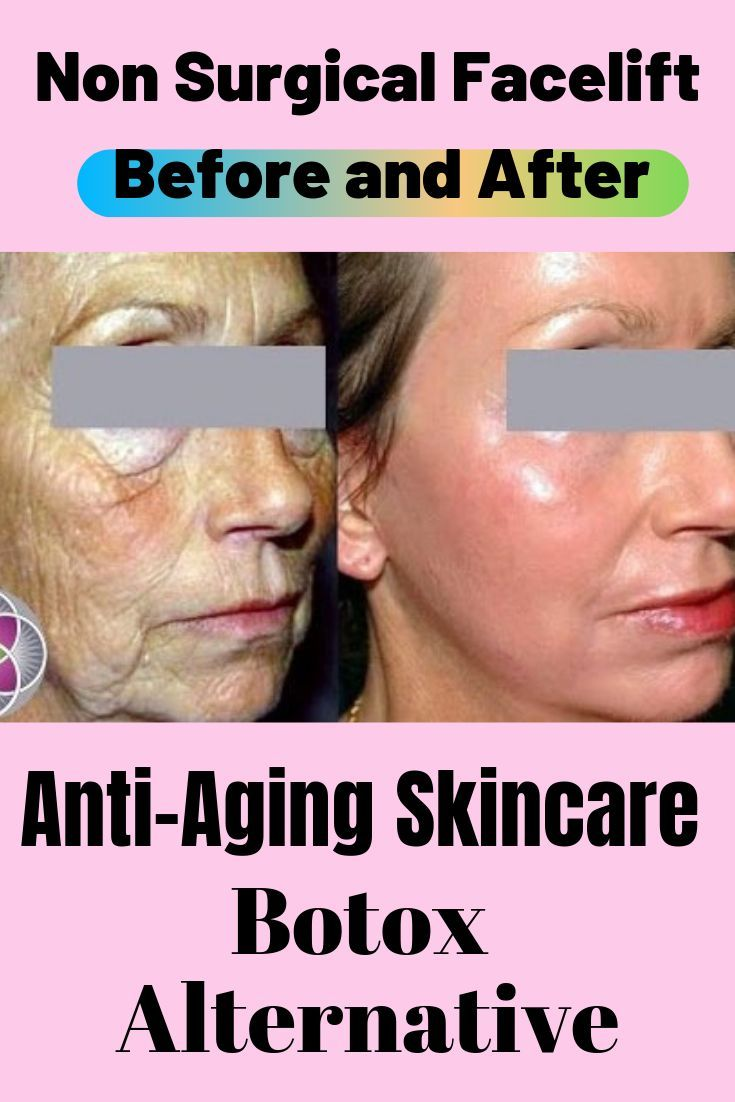 Non Surgical Facelift Before And After Anti Aging Skin Care